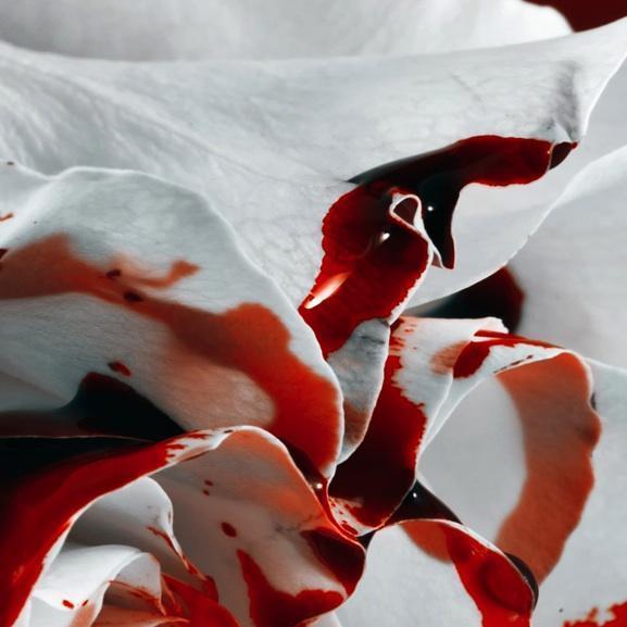 como-quitar-las-manchas-de-sangre-de-la-ropa